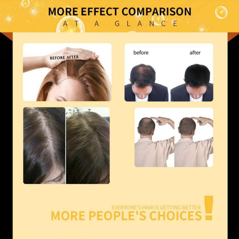 Unisex Hair Growth Serum Ginger Fast Growth Essential Oil Anti Preventing Hair Lose Liquid Damaged Hair Repair Growing TSLM2 3