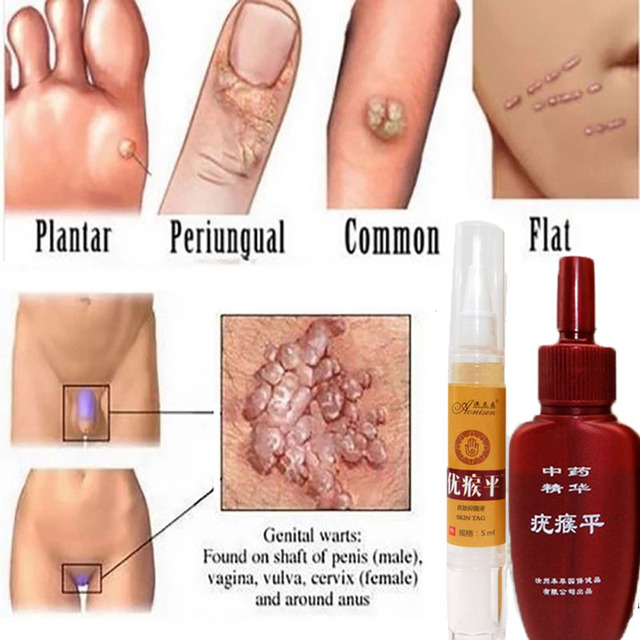 Mole & Genital Wart Remover  2