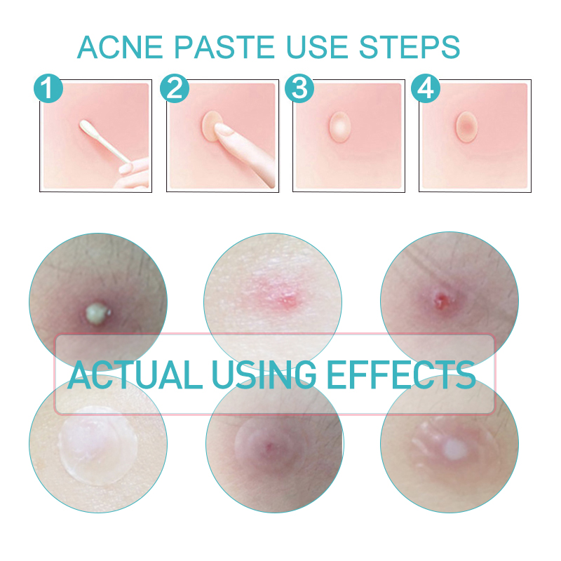 Fast Clear Skin Tag Patch