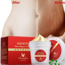 Body Cream Natural Essence Repair Cream For Stretch Marks Scar Removal Skin Repa