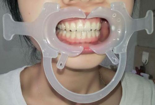 5 шт. зубные щеки губы Ретрактор рот открывалка c-формы с ручкой белый маленький