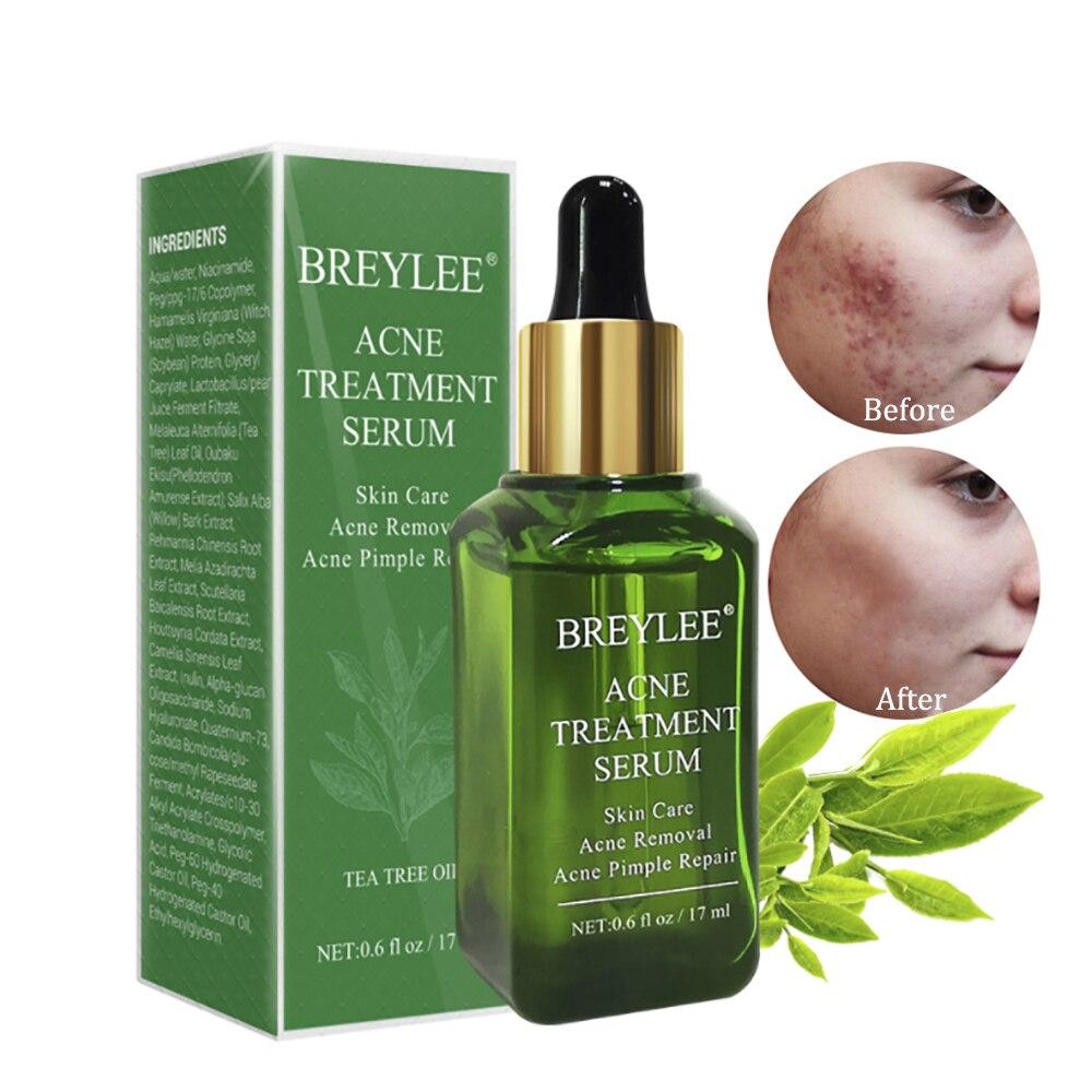 Facial Essence Anti Acne Scar Removal Cream Acne Treatment  Face Skin Care Whitening Repair Pimple Remover For Blackhead Acne