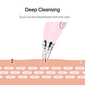 Image 2 - InFace Vakuum Mitesser Entferner Hautpflege Poren Akne Pickel Entfernung Mitesser Entfernung Gerät Vakuum Poren Reiniger
