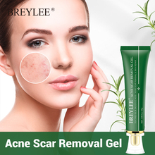 BREYLEE Acne Scar Remover Gel Acne Treatment Fade Acne Marks Soothing Repairing Face Serum Facial Essence Beauty Skin Care 30g cheap Unisex Australian tea tree Nicotinamide salicylic acid BREAAAABY CHINA GZZZ YGZWBZ 20200425005 Fading and soothing acne marks