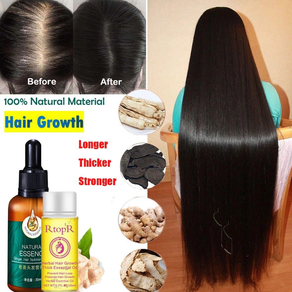 Эссенция для роста волос Ginger быстро толстая для восстановления поврежденных волос против выпадения волос, более толстая натуральная проду...