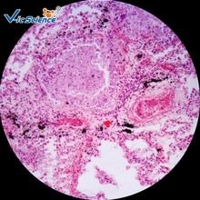 Hot Sale 200pcs Histology Pathological Prepared Slides 200pcs human pathology slides