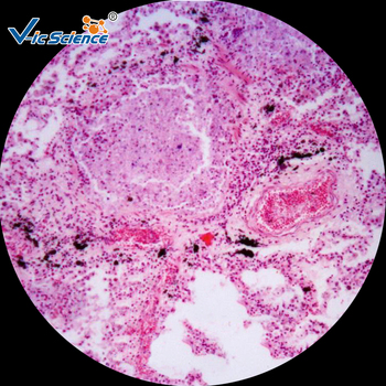 цена на 200pcs Histology Pathological Prepared Slides Laboratory Pathological tissue Prepared Slides