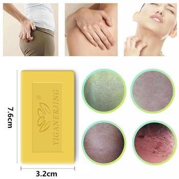 1 sztuk mydło siarkowe usuwanie trądzik pryszcz leczenie porów łuszczyca łojotok egzema Anti grzyb kąpiel wybielanie szampon mydło TSLM2 tanie i dobre opinie soap China Handmade soap 2 years 7 6*3 2*0 8cm
