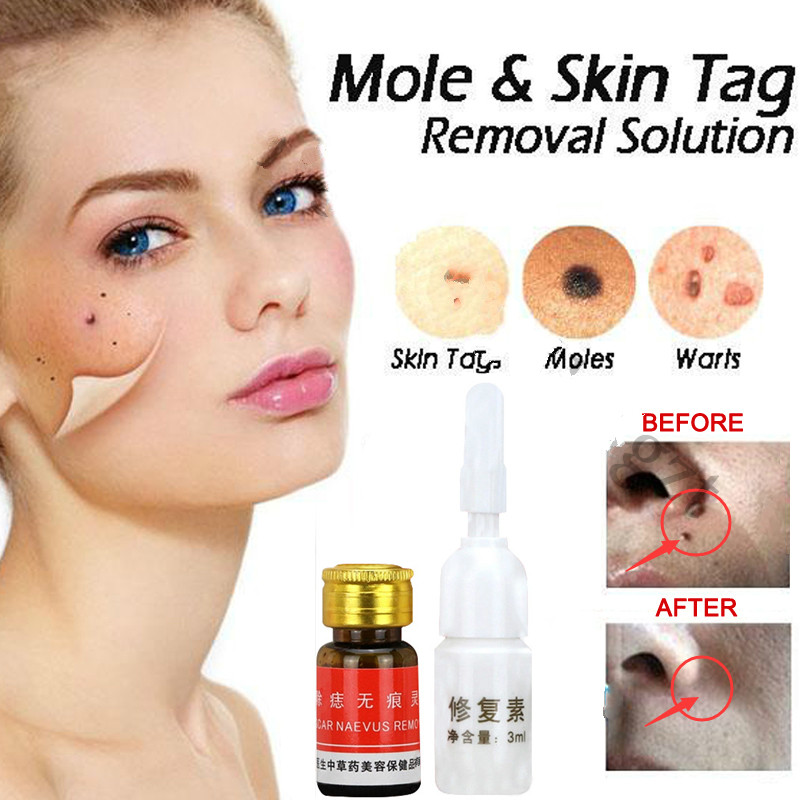 Mole & Skin Tag Removal Solution Painless Mole Skin Dark Spot Removal Face Wart Tag Freckle Removal Cream Oil Plaster