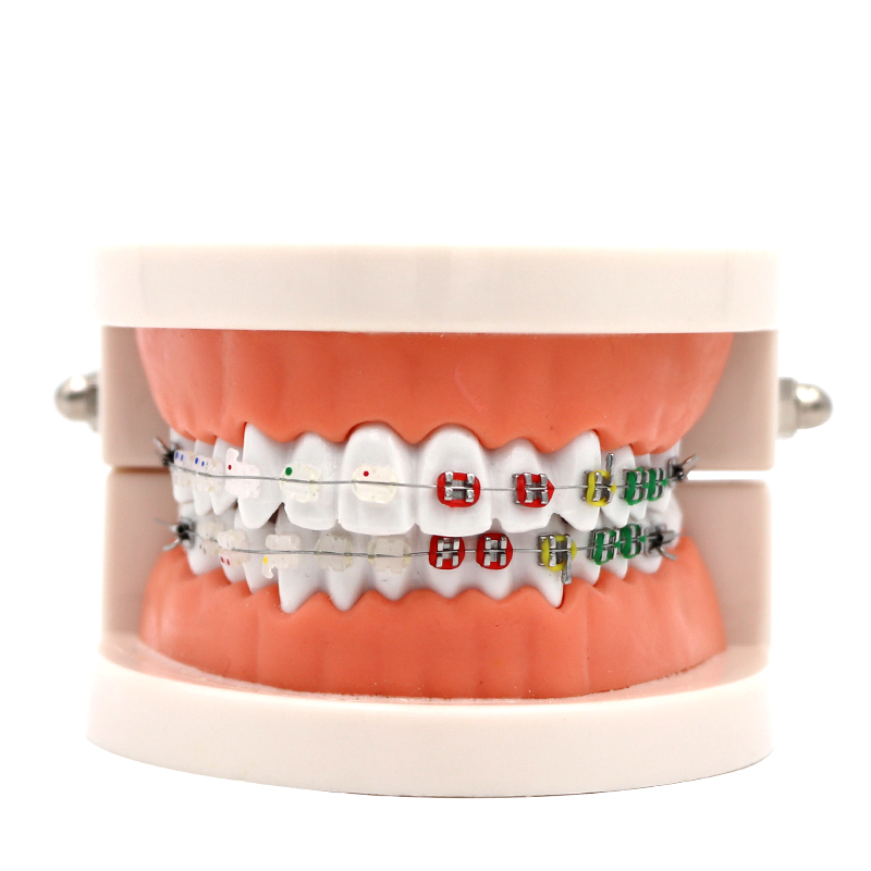 1pc Dental Orthodontic Treatment Model Typodont With Ortho Metal Ceramic Bracket Arch Wire Orthodontic Toothed Denture Model