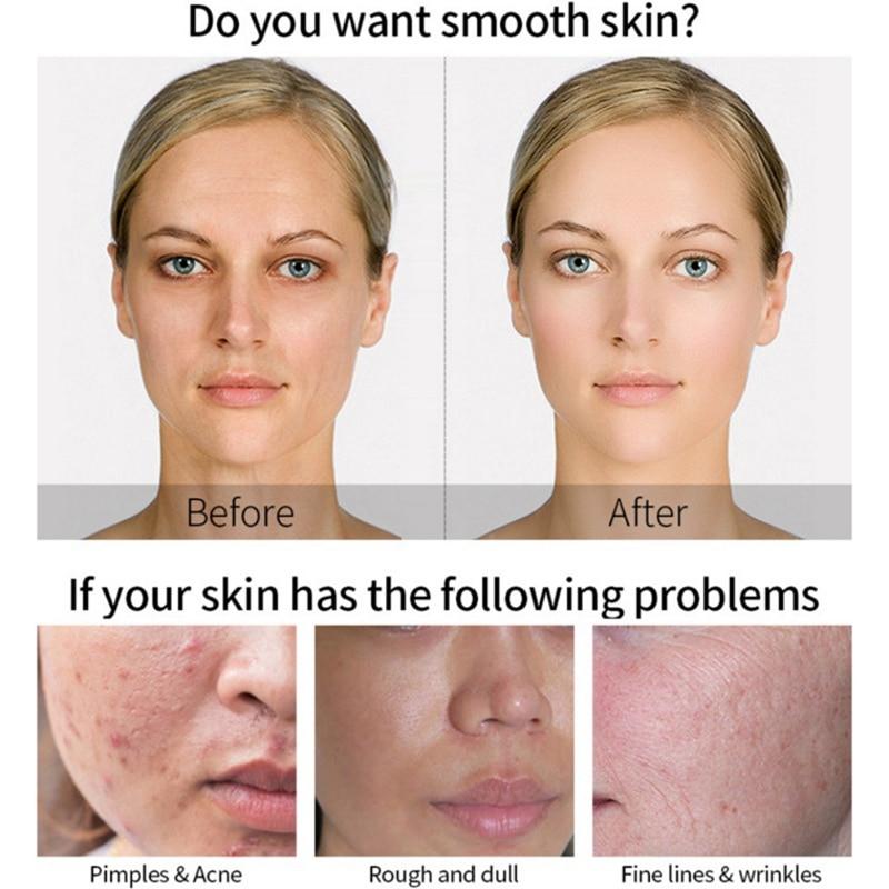 MATRIXYL 3000 Serum Vitamin C Hyaluronic Acid Reduce Sun Spots And Wrinkles