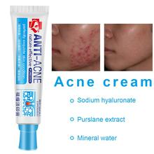 Acne Mark Removal Cream Refreshing Pore Cleansing Grease Removal Facial Care Cream For Men And Women все цены