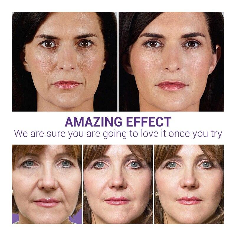 LANBENA Face Serum Essence Hyaluronic Acid 24K Gold Anti-Aging Vitamin C Whitening Blackhead Acne Remover Moisturizing Skin Care