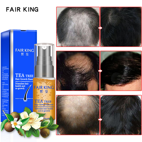 Tea Tree Hair Growth Essence Hair Loss Products Essential Oil Liquid Treatment Preventing Hair Loss Hair Care Products 20ml Karachi