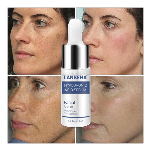 LANBENA Hyaluronic Acid Serum Snail Essence Anti-Aning Winkle Repair Acne Treatment Moisturizing  Whiten Skin Face Cream 10PCS