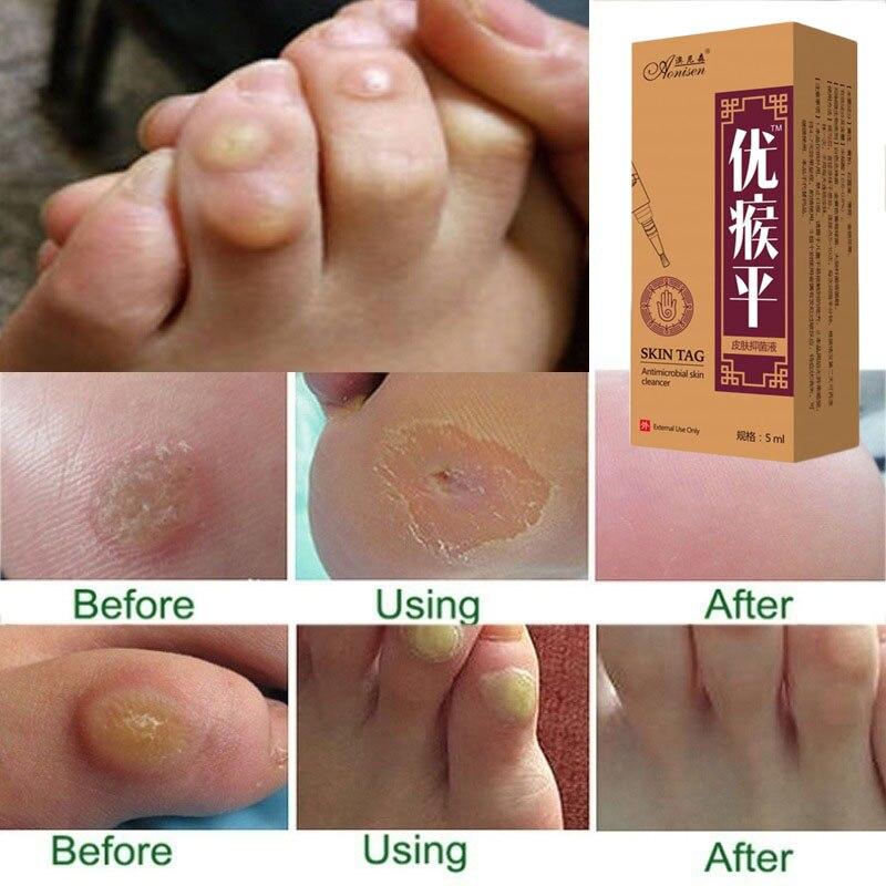 Mole & Genital Wart Skin Remover  2
