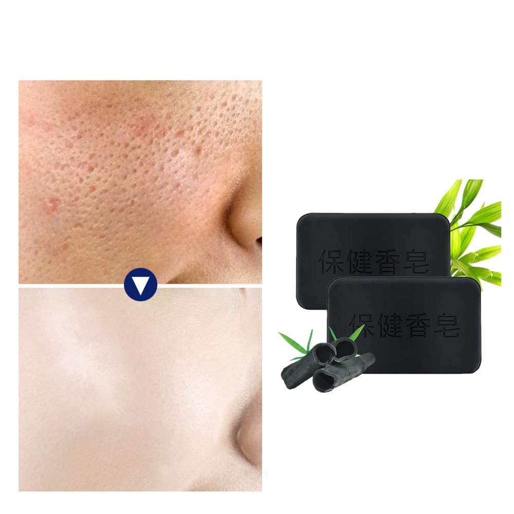 Bamboo Charcoal Antiacne Soap Anti Blackhead Healthy Care Active Energy Charcoal Tourmaline Whitening Moisture Anti-wrinkle Soap