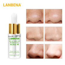 LANBENA Deep Blackhead Softener Derived Liquid Nose Black Head Remover Acne Treatment Cleansing Skin Care