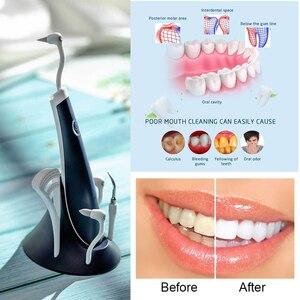 Image 5 - Spray clareador dental 5 em 1, ferramenta removedora ultra sônica para limpeza dos dentes, removedor de pedra para vibração