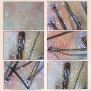 Image 5 - 3MP HD WIFI Haut Kopfhaut Detektor Led leuchten Haarfollikel Tester Schönheit Shop Salon Pflege Gesichts Haus Prüfung Digital Mikroskop