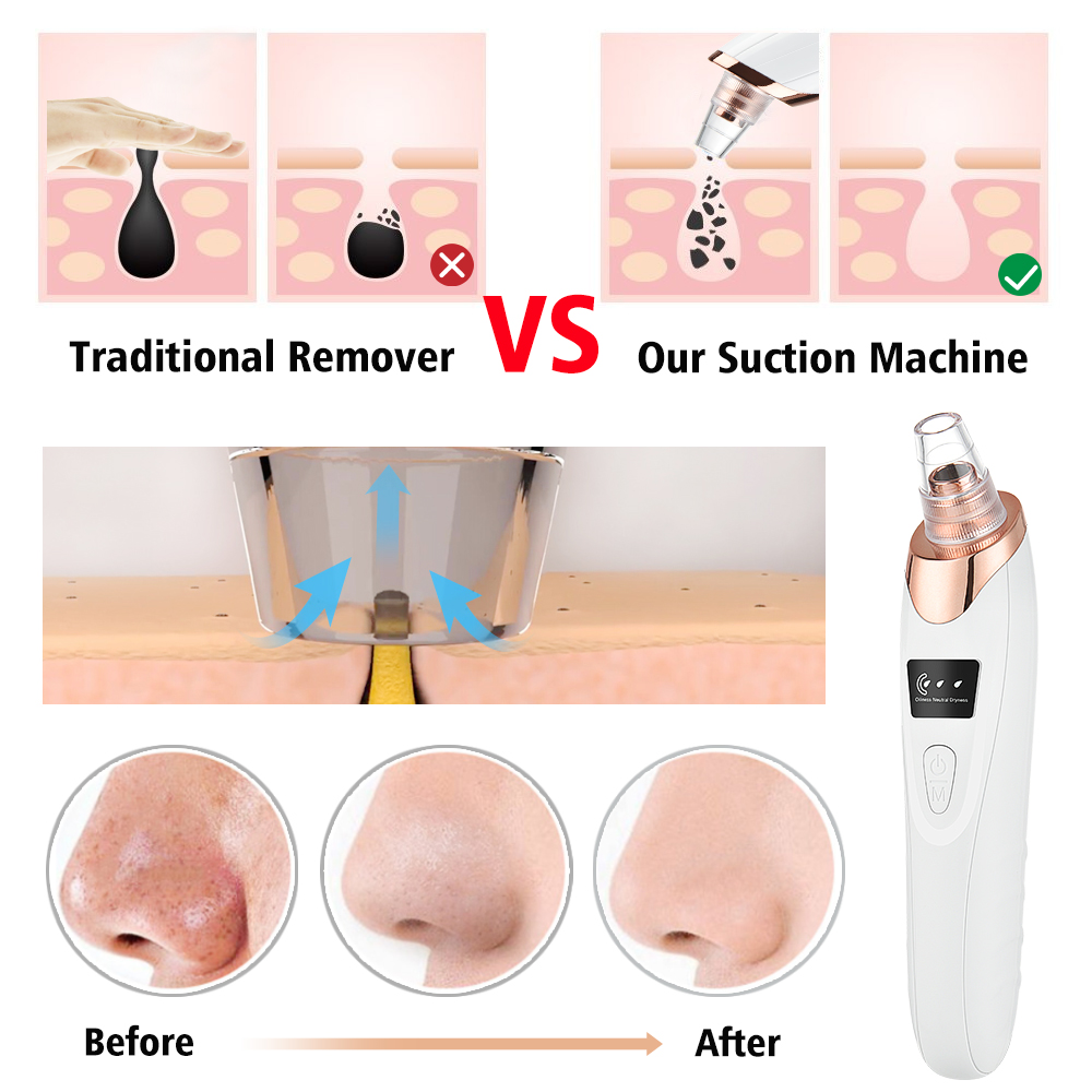 Blackhead Remover Vacuum Acne Pimple Black Spot Suction Electric Facial Pore Cleaner Skincare Exfoliating Beauty Instrument-1