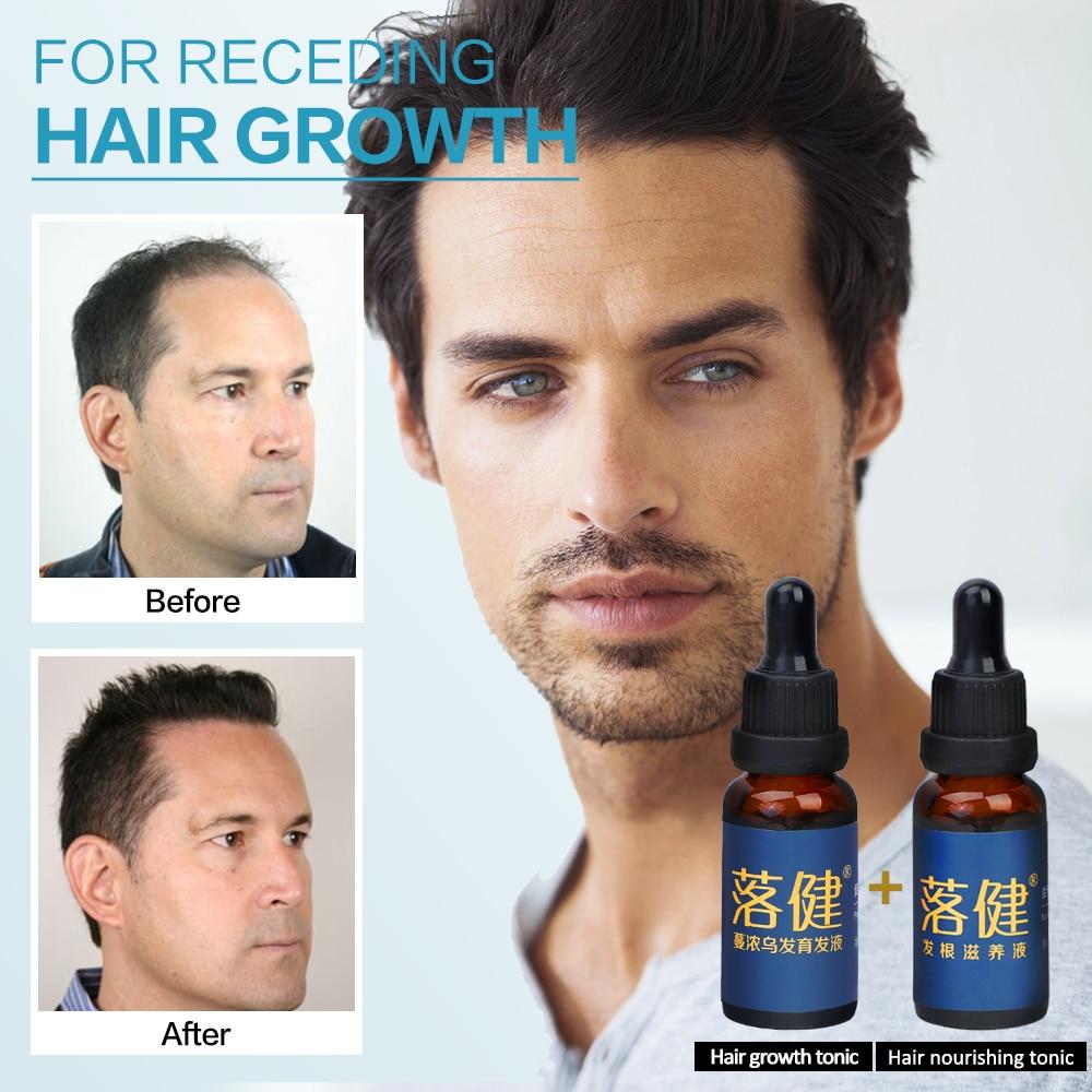Hair Care Hair Growth Essential Oil Essence Hair Loss Liquid Treatment Health Care Beauty Dense Hair Growth Serum for Men Women 2