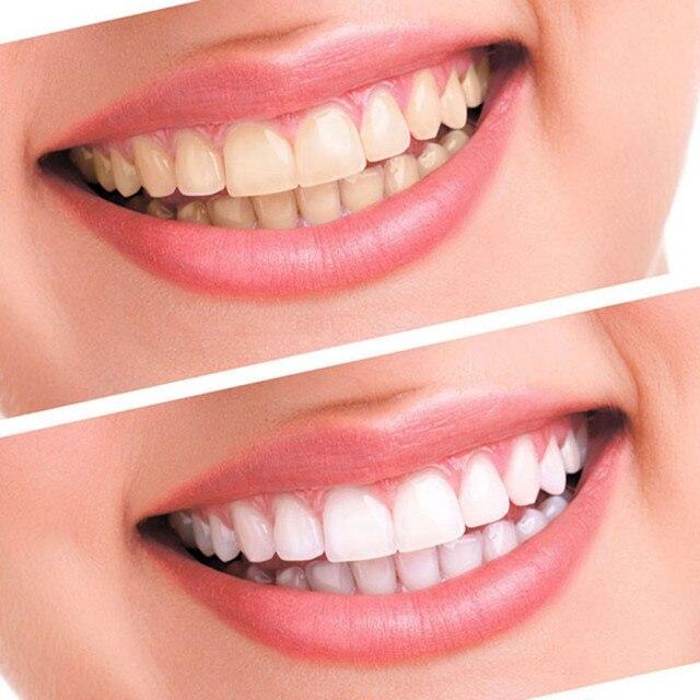 отбеливание зубов 44% пероксид гель набор система отбеливания фотография