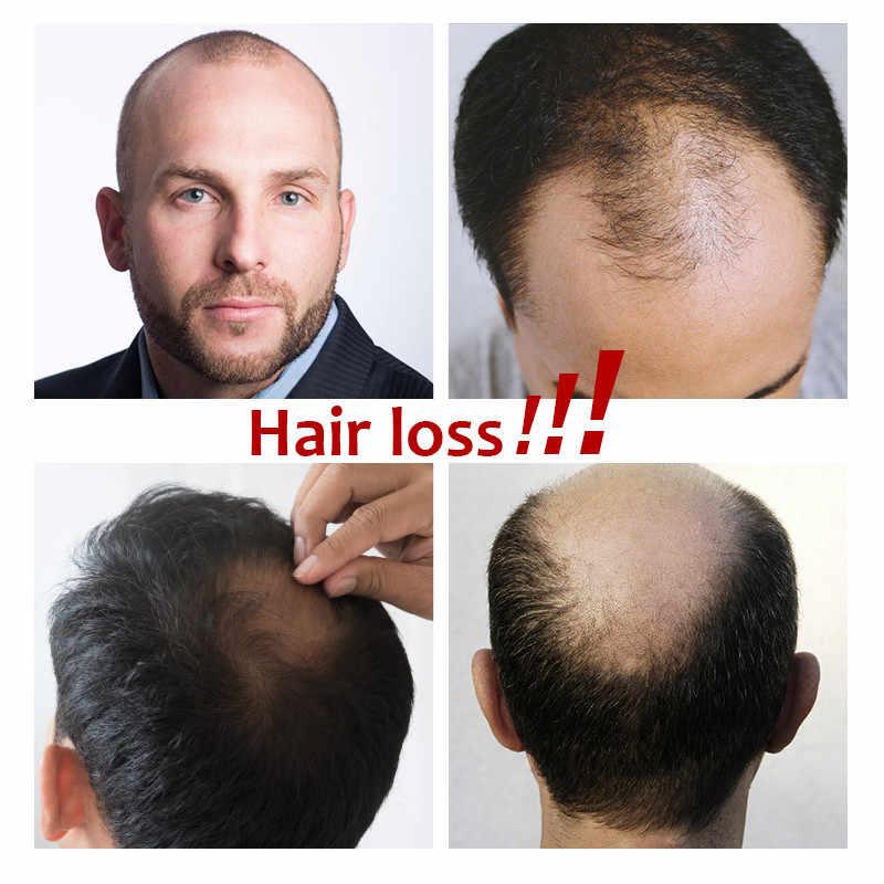 Мужской парик полный шнурок афро кудрявый замена волос система ручной работы шиньоны индийские человеческие волосы remy
