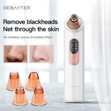 Cravo removedor de sucção a vácuo facial acne limpeza beleza instrumento ferramentas cuidados com a pele mais limpo preto dot uso doméstico dispositivos