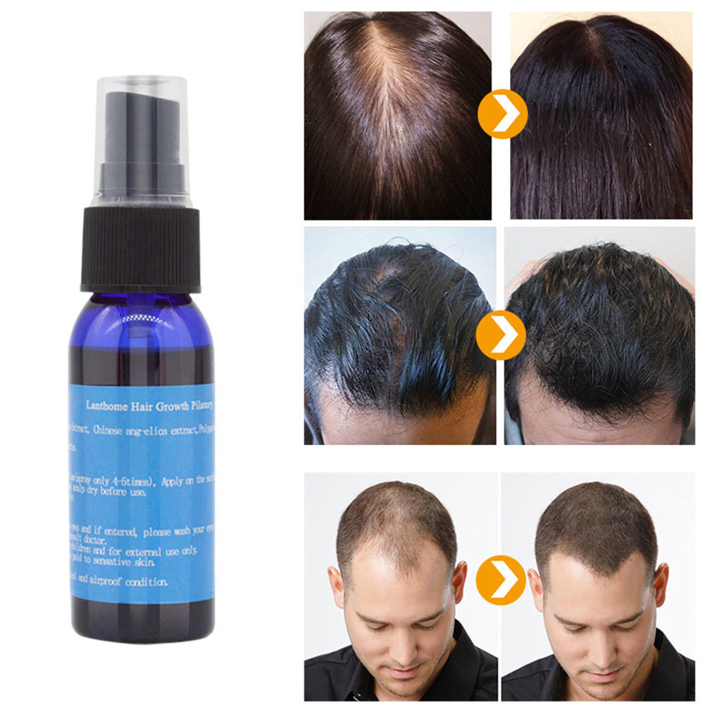 Lanthome Hair Growth Oil Products Hair Loss Treatment Regrowth Essence Men and Women Hair Care Growth Serum Beauty Essence