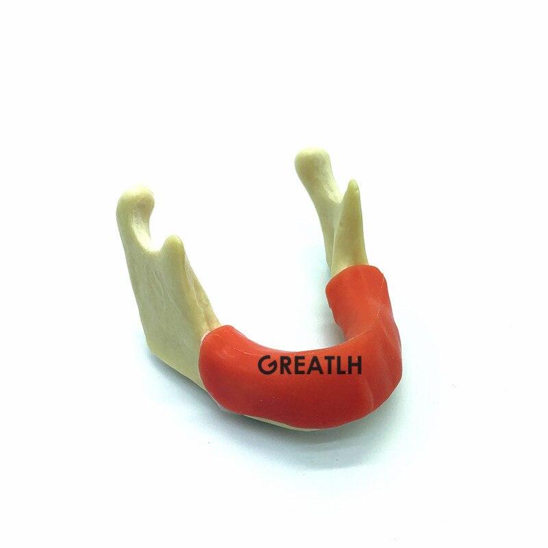 Dental implante prática dentes modelo mandíbula mandíbula