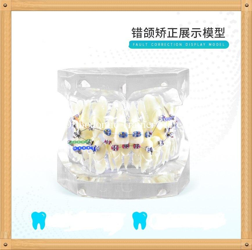 Ортодонтическая модель зубов с кронштейном и лигатурной проволокой для коррекции неисправностей/Стоматологическая Ортодонтическая модел