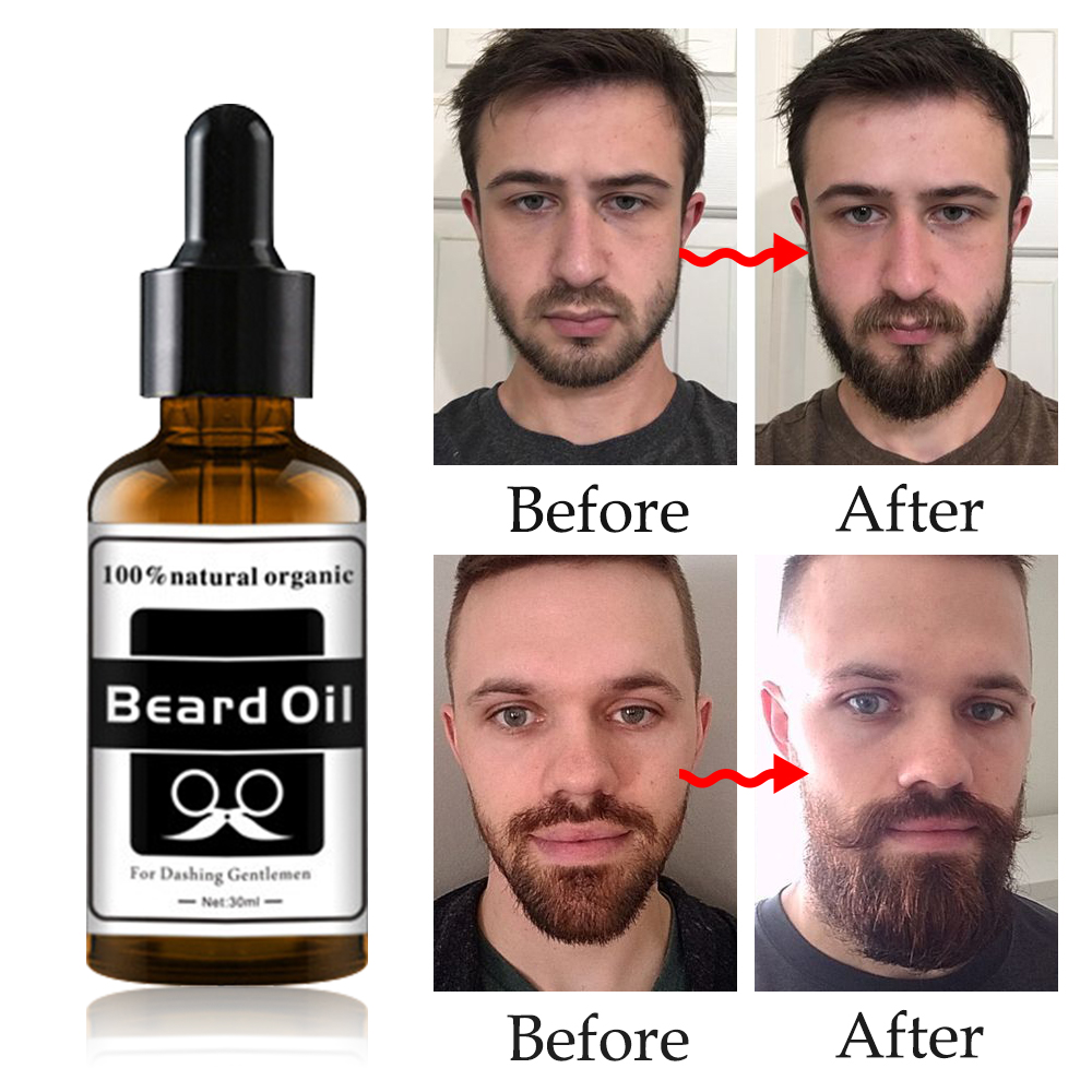 Beard Growth Oil 100% Natural Organic in Accra -Ghana 5