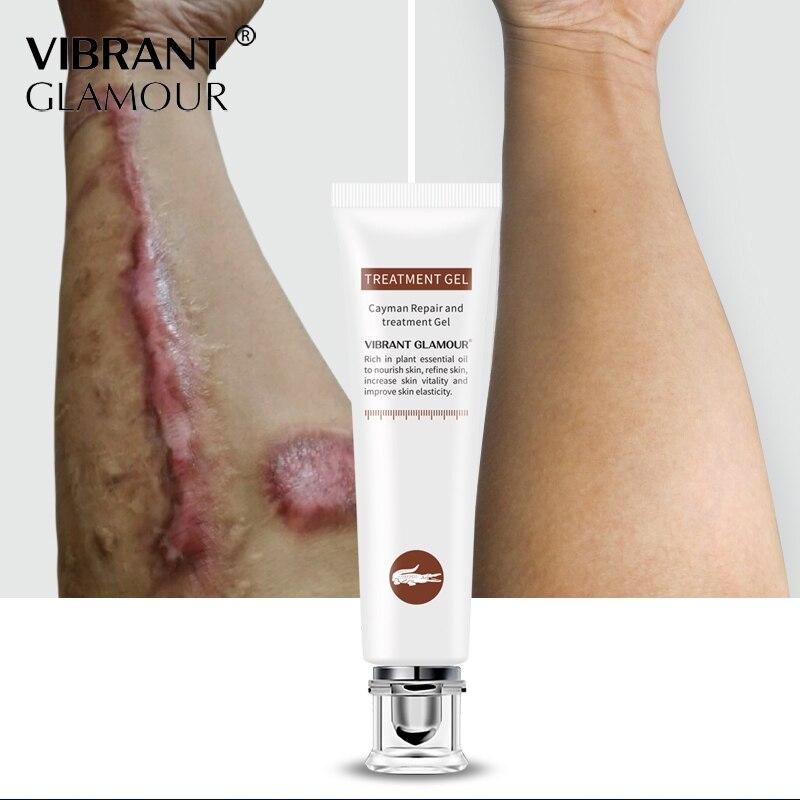 Купить с кэшбэком VIBRANT GLAMOUR Crocodile Scars Face Cream Dispel Scar Repair Gel Remove Acne Scar Stretch Marks Treatment Skin Lightening Care
