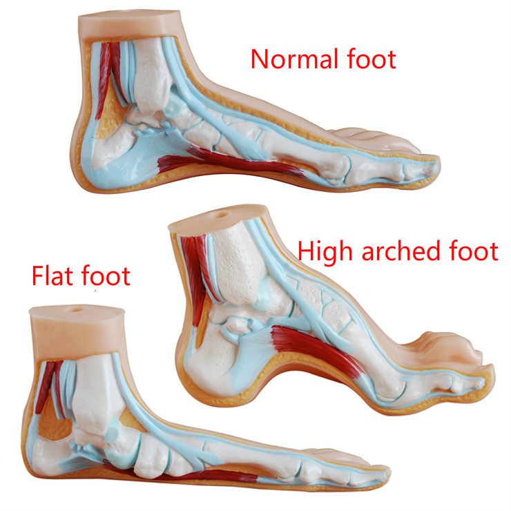 Medical Anatomy Human Foot Normal Foot Flat And Arched Foot Anatomy Model Human Sketelon Model Flat High Arched Feet 3pcs/set