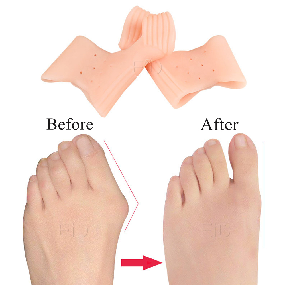 EiD Orthotic Insoles Silicone Gel Toes Separator fot Hallux Valgus Toe Correction Cushion Forefoot Pad Inserts Foot care Unisex