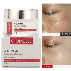 CHUMOLEE Alpha Arbutin 5% wybielanie pieg krem do twarzy Melasma usuń trądzik ciemne plamy melanina Pigment nawilżający pielęgnacja twarzy