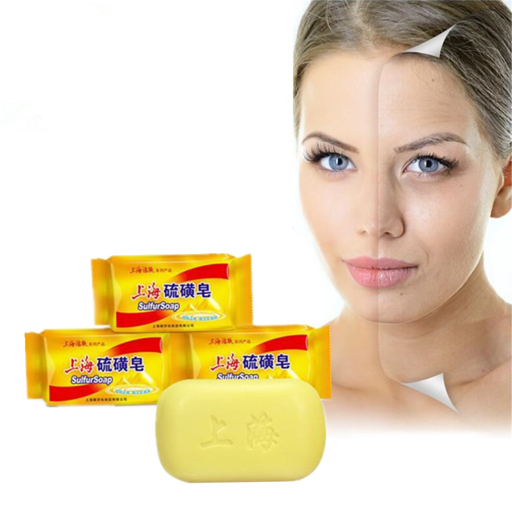 Hot!!! Chinese Medicine Soap. Treatment Of Acne. Psoriasis. Fresh And Shiny Skin. Lean Face, Thin Body And Skim Bath Lotion 85g