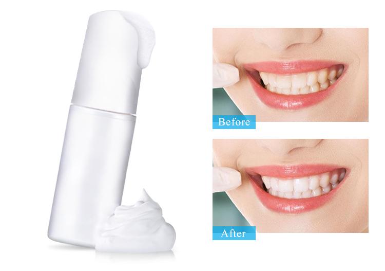 IVISMILE Bleaching Free Private Label Advanced Teeth Whitening Foam