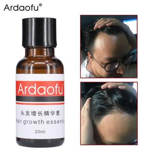 BellyLady 20ml Hair Growth Essence Preventing Baldness Consolidating Anti Hair Loss Nourish Roots Hair Care Hair Growth Oil