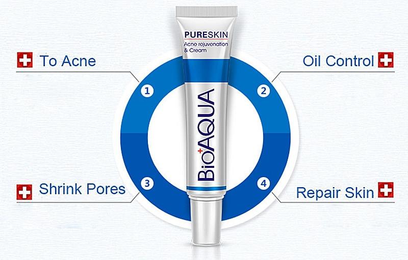 New Hot Bioaqua 30g Anti Acne Cream Oil Control Shrink Pore Acnes Scar Remove Face Care SMR88 6