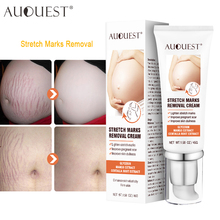 AUQUEST Stretch Marks Removal Body Cream for Pregnant Women Maternity Repair Stretch Marks Skin Firming Body Care 45g