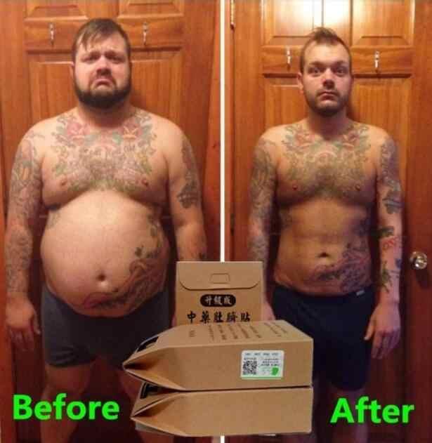 抗セルライトの減量中国医学痩身食事パッチ 10 ピース/バッグスリムパッチデトックス粘着シートフェイスリフトツール