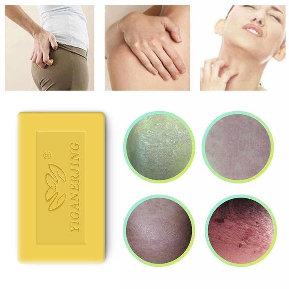 2019 Handmade Whitening Soap Skin Lightening Soap Bleaching Kojic Sulfur Soap Deep Cleaning Brighten Skin TSLM1