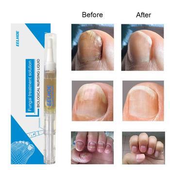 3 ML Fungal Nail Repair Pen Gentle High Penetration No Irritation Onychomycosis Paronychia Anti Fungal Nail Care Liquid Tool 1