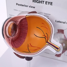 Eyeball-Model Teaching Anatomical Glaucoma-Display Right-Eye Cross-Section Human New