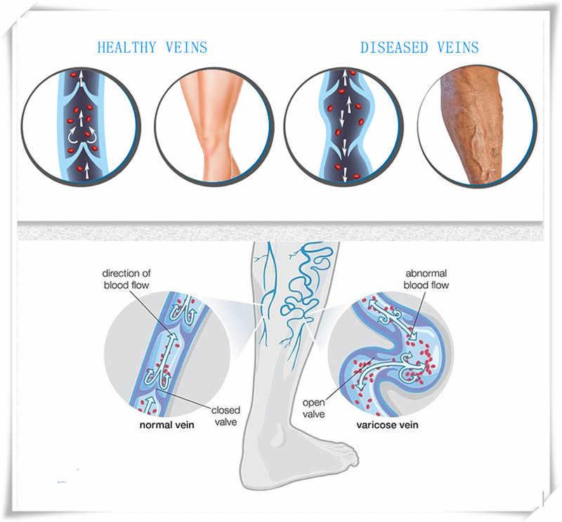 Chaussettes de veine variqueuse médicale bas de pression de classe 2 Anti-saut Compression cuisse chaussettes soulagement de la douleur pied fermé/ouvert
