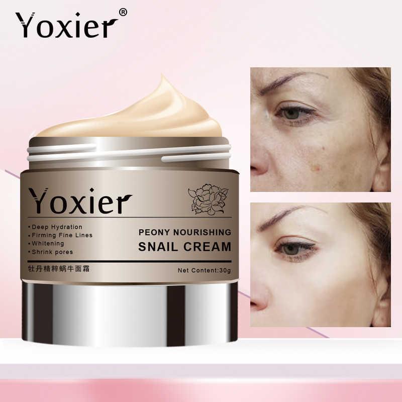 Yoxier الفاوانيا المضادة للتجاعيد كريم وجه مغذي مكافحة الشيخوخة تبييض العناية بالبشرة علاج حب الشباب حمض الهيالورونيك الحلزون كريم