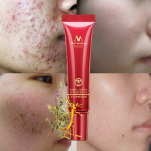 Face Acne Cleaning Cream Skin Care Remove Repair Comedone Pimple Acne Quickly Face Acne Cream Remover Anti Acne Treatment chinese herbal face cream rosacea treatment red nose acne rosacea remover face cream redness flushing vaselines acne treatment