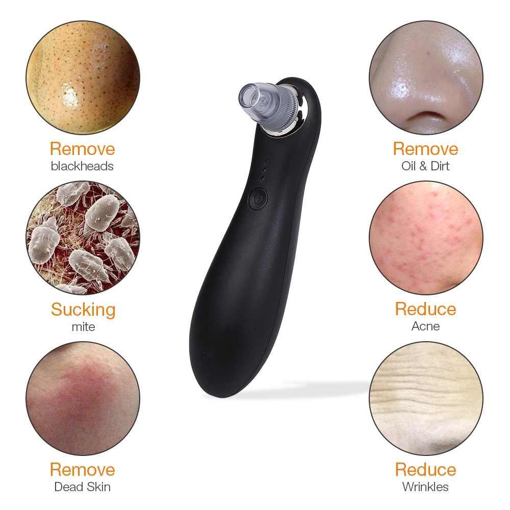 Средство для удаления угрей в носу и угрей, вакуумное средство для удаления прыщей в черные точки, Чистый Очиститель для лица, средство для удаления угрей